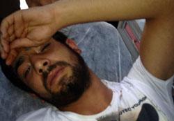 Polis Ağrı'da bir genci başından vurdu