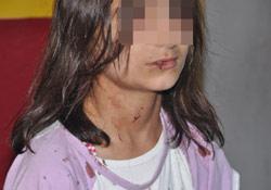 11 yaşındaki kızı darptan üvey anne serbest, oğlu gözaltında