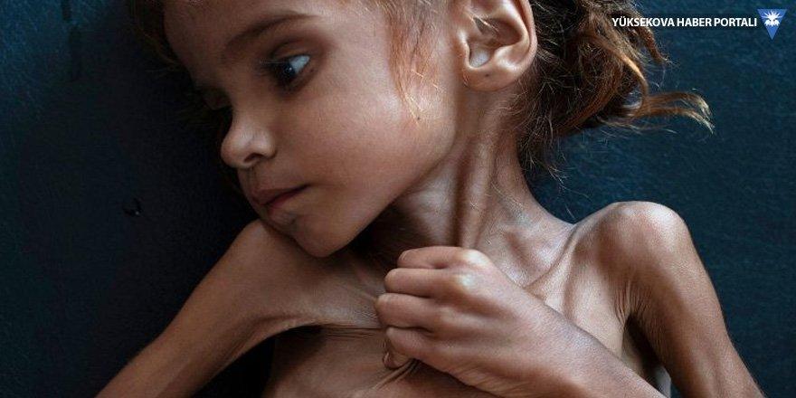 Yemen'deki savaşın 7 yaşındaki sembolü Emel hayatını kaybetti
