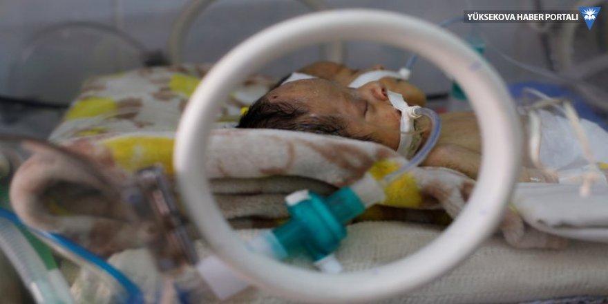 Suudi Arabistan hava sahasını açmadı, iki haftalık yapışık ikiz bebekler öldü