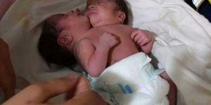 Çift başlı bebek tedavi altında
