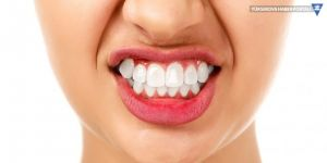 Diş sıkma ağız yapısını bozuyor