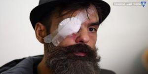 Sarı Yelekliler lideri Jerome Rodrigues 'plastik mermiyle' vuruldu, bir gözünü kaybetti