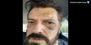 Hakan Bayrakçı saldırıya uğradı