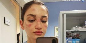 İtalyan hemşirenin korona paylaşımı viral oldu: Korkuyorum, yoruldum ama işimi seviyorum