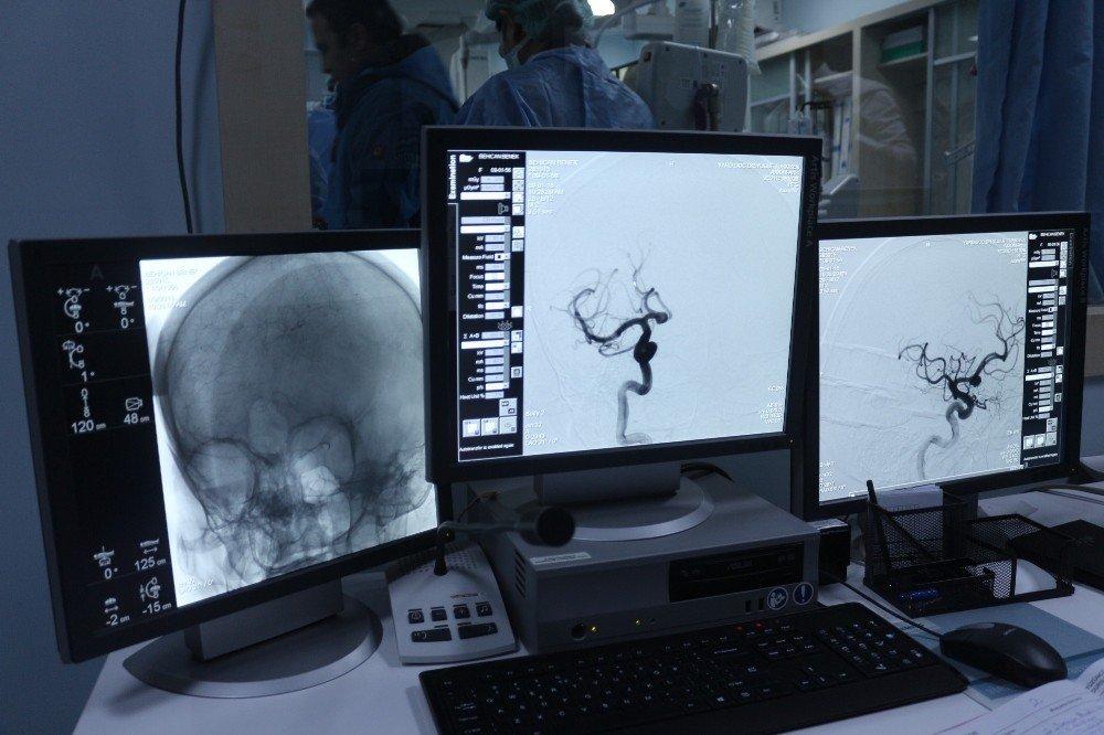 Van'da beyin damarlarına anjiyo tedavisi